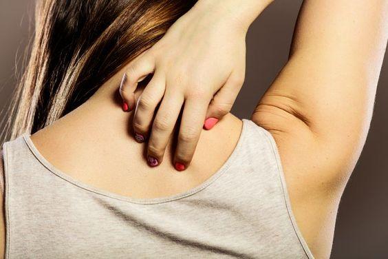 contact dermatitis disease