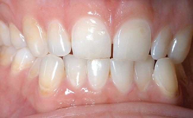 Enamel-Erosion - Toothache