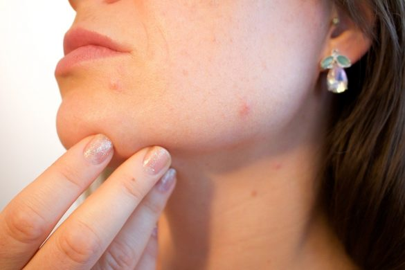 Simple ways to remove pimples