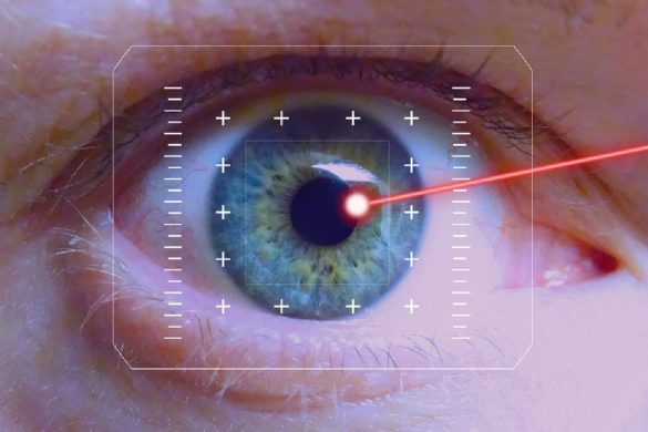 Are You the Right Candidate for Lasik Eye Surgery