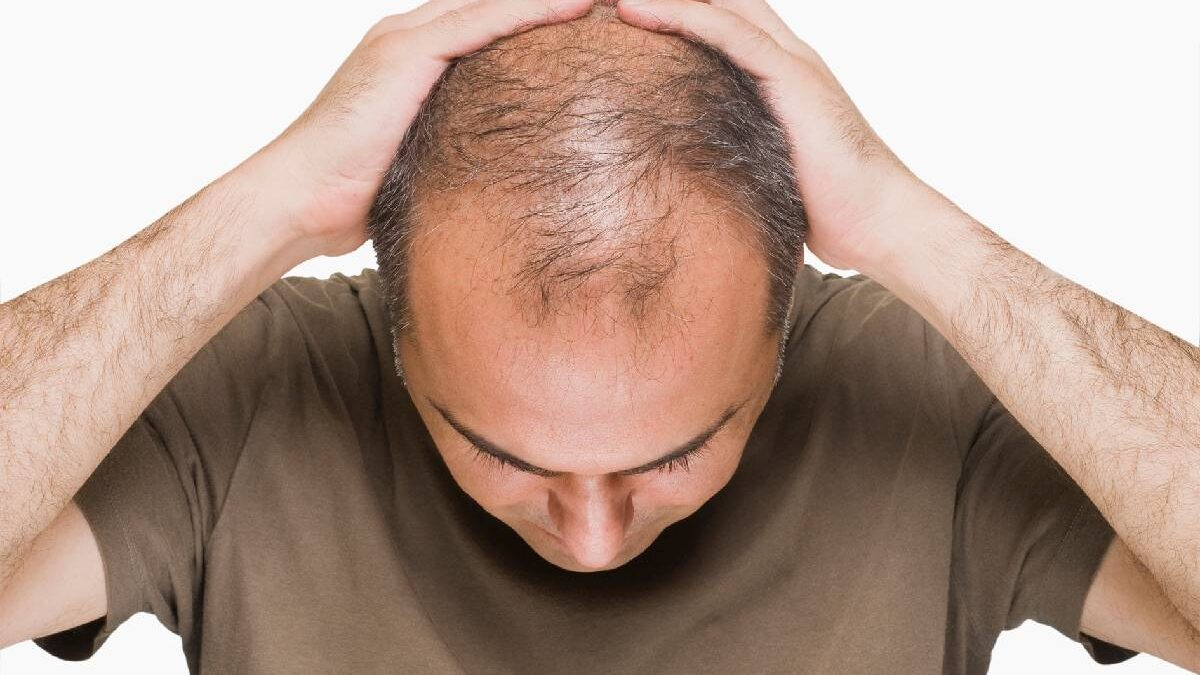 Fighting Male Pattern Baldness
