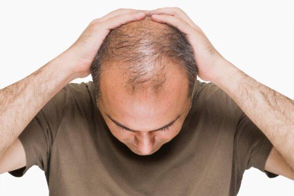 Fighting Male Pattern Baldness