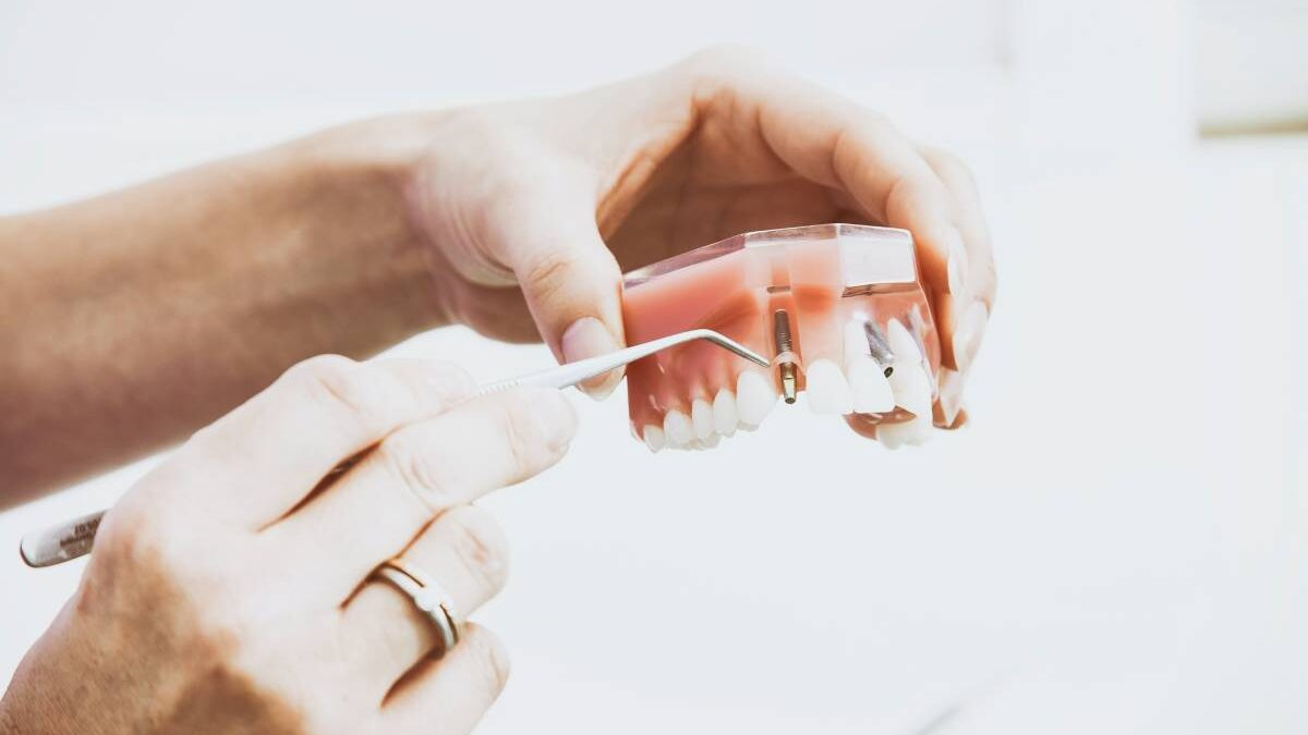 A Timeline of How Dental Implant Healing Goes