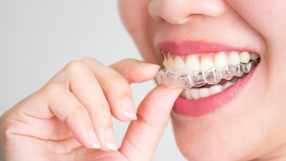 21 Braces Tips Recommended by Dentists for Adults Over 50 Years Old