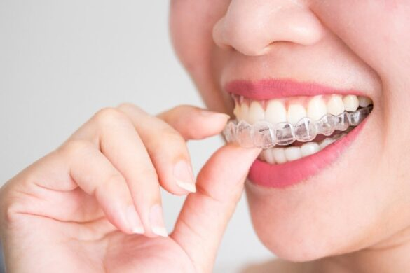 21 Best Braces Tips for Adults Over 50
