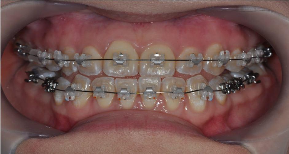 Self-ligating ceramic braces