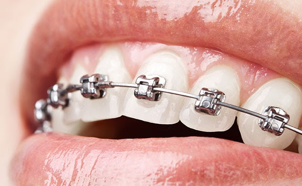 Self-ligating metal braces