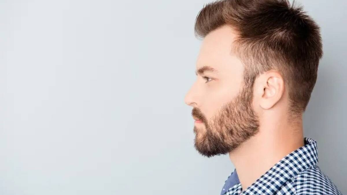 Should You Get a Hair Transplant?