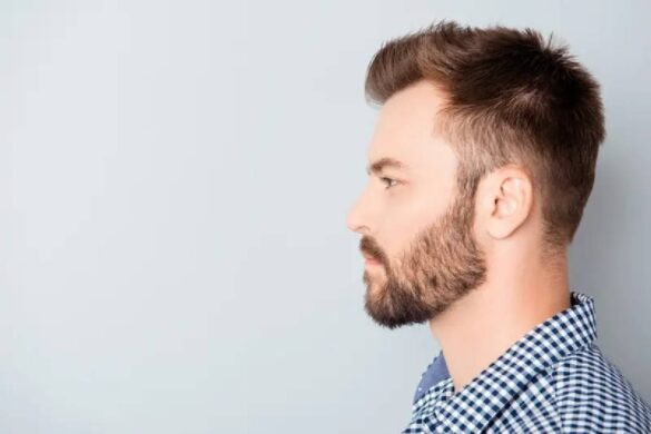Should You Get a Hair Transplant