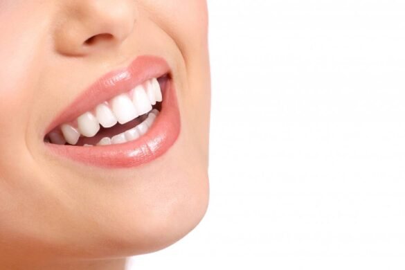 What Are the Different Types of Gum Disease