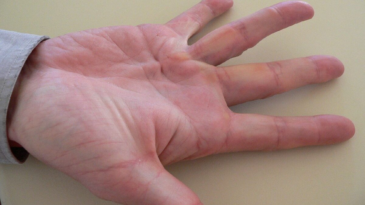 What are the risks of Dupuytren's Contracture, and Why does it occur?