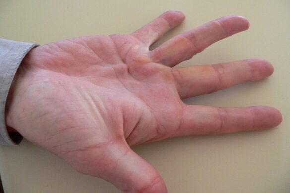 What are the risks of Dupuytren's Contracture