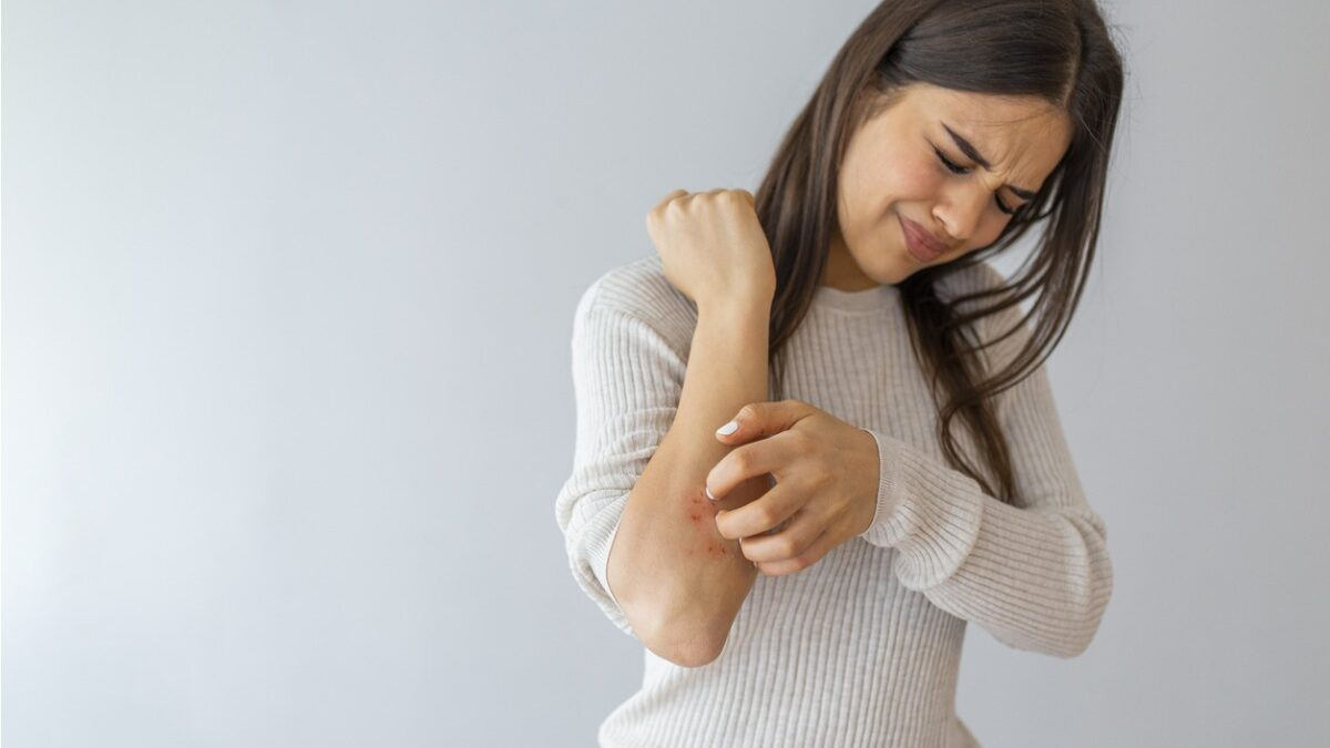 What Can You Do to Treat Psoriasis?