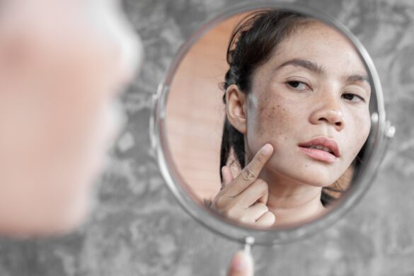 Five Reasons Why People May Develop Skin Problems