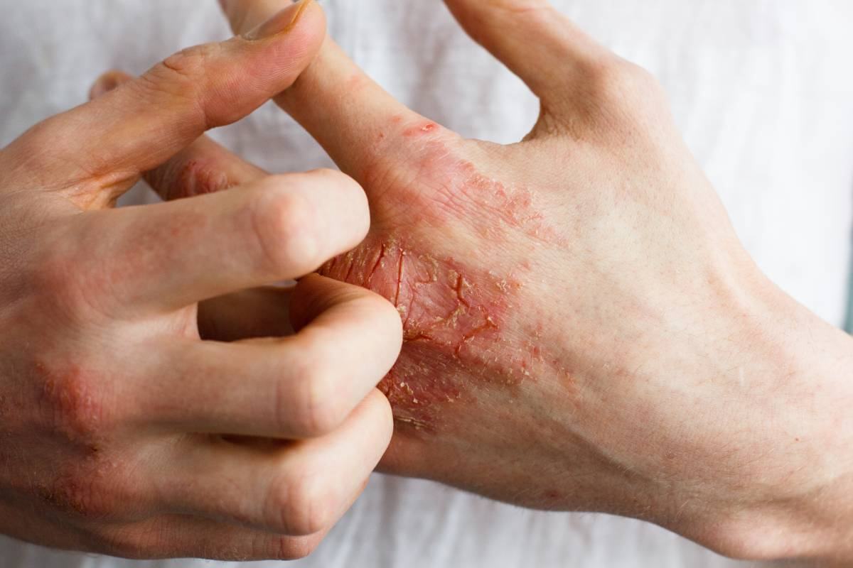 Why People May Develop Skin Problems