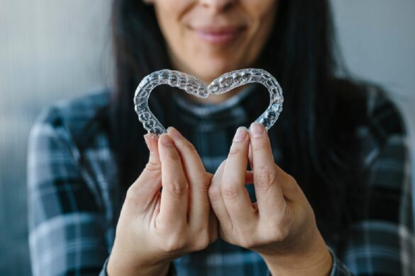 Clear Aligners-Your Questions Answered