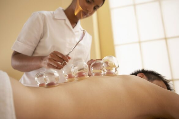 Quick-start guide on how to use cupping set for post-workout back soreness