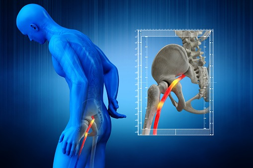Leg And Hip Pain